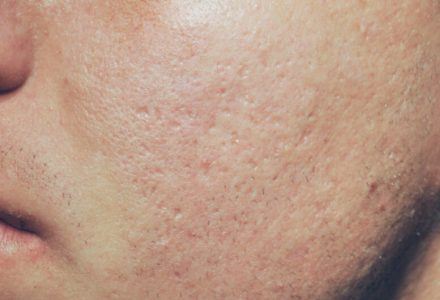 acne-scars-2_after-440x300